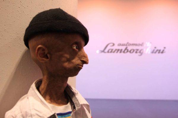 Kid with progeria celebrates 15th birthday with Lamborghini Mumbai - 4
