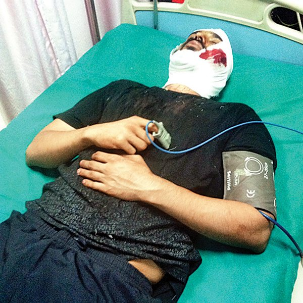 Biker attacked in Malad by drunk drivers