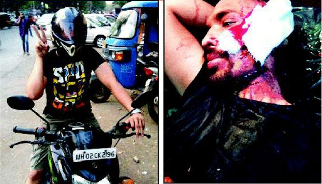 Biker attacked in malad