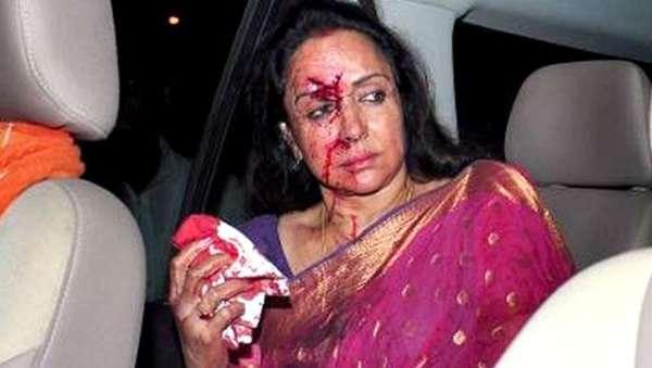 Hema Malini crash 1
